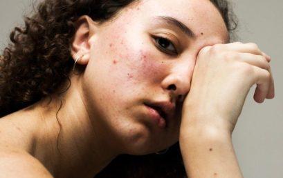 Atasi Jerawat Membandel Akibat Stres Dengan 5 Cara Ini